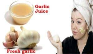Amazing-benefits-of-Garlic-for-Acne-and-skin-care