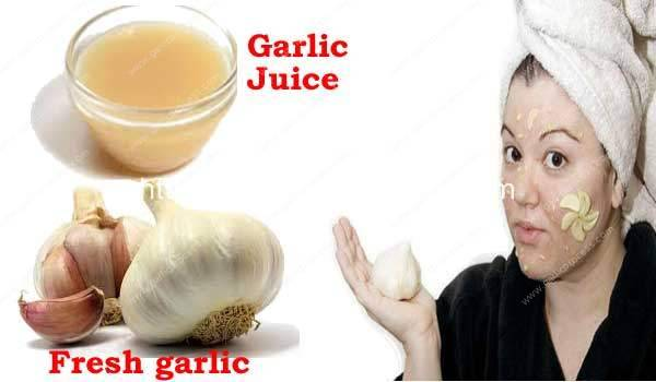 How To Apply Garlic On Pimples
